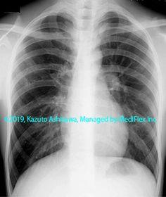 9. 先天性の異常 症例087:気管支閉鎖症 胸部単純X線写真,『コンパクトX線アトラスBasic 胸部単純X線写真アトラス vol.1 肺』 Radiology