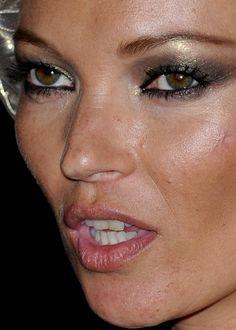 celebrities with hirsutism