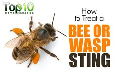 Swollen Feet Remedies How to Treat a Bee or Wasp Sting Wasp Sting Swelling, Wasp Stings Relief, Bug Bite Swelling, Bee And Wasp Stings, Remedies For Bee Stings, Foot Remedies, Top 10 Home Remedies, Natural Remedies