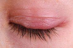 Blefarite: rimedi casalinghi per alleviare infezione e occhi gonfi