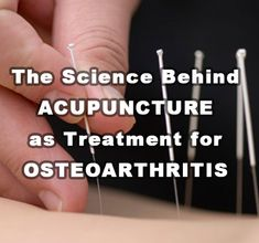 Acupressure Pain Relief The Science Behind Acupuncture As Treatment For Osteoarthritis - The Science Behind Acupuncture As Treatment For Osteoarthritis Dry Needling Therapy, Womens Health Care, Acupuncture Benefits, Accupuncture, Muscle And Nerve, Acupressure Treatment, Pain Management, Chronic Pain, Arthritis