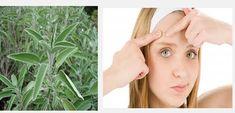 E' possibile curare i brufoli con le foglie di salvia, ottima pianta che purifica, rinfresca e aiuta a lenire i pori irritati dall'eccesso di sebo
