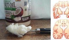 http://navodynapady.cz/tento-muz-jedl-dve-lzice-kokosoveho-oleje-denne-vysledky-jsou-neuveritelne/