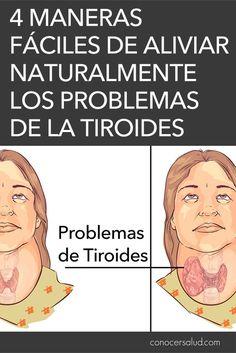 4 maneras fáciles de aliviar naturalmente los problemas de la tiroides - Conocer Salud