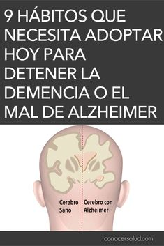 9 hábitos que necesita adoptar hoy para detener la demencia o el mal de Alzheimer antes de que comience