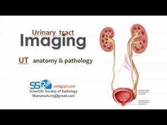 Urinary tract , anatomy and pathology I ( التشريح الاشعاعي للمسالك ) - Prof. Dr. Mamdouh Mahfouz - YouTube