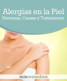 #Alergias en la Piel: Qué es, Síntomas, Causas y Tratamiento