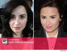 Demi Lovato Chin Surgery