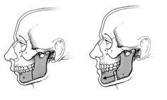 Mandibular Or Jaw Reconstruction Surgery In India