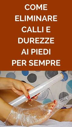 How to eliminate calluses of the feet forever with onion and ac .- Come eliminare i calli dei piedi per sempre con cipolla e aceto bianco How to remove calluses of the feet forever with onion and white vinegar – – - Health And Beauty, Health And Wellness, Health Fitness, Diy Beauty Care, Beauty Hacks, Sr1, Desperate Housewives, Stress, Beauty Recipe