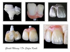 implant case