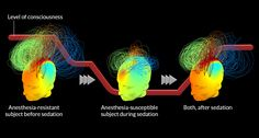 Measuring brain waves may help predict patients response to anesthesia Medical Science, Science News, Nursing Articles, Levels Of Consciousness, Like Fine Wine, The Time Is Now, Brain Waves, Neuroscience, Don't Give Up