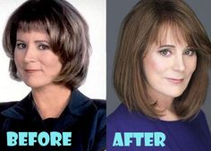 Patricia Richardson Plastic Surgery Before and After Pictures - Celebrity Stil Plastic Surgery Facts, Plastic Surgery Photos, Celebrity Plastic Surgery, Celebrities Before And After, Before And After Pictures, Patricia Richardson, Scar Makeup, Tv Moms, 90s Tv Shows