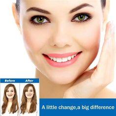 Magic Smile Teeth Brace – Inspired Household Teeth Whitening Cost, Teeth Whitening System, Whitening Kit, Teeth Braces, Smile Teeth, Teeth Bleaching, Stained Teeth, Perfect Smile, Lighten Skin
