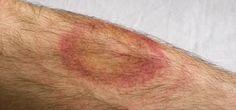 La enfermedad de Lyme es una patología infecciosa provocada por la bacteria Borrelia burgdorferi, transmitida por la picadura de una garrapata infectada y que puede afectar a varios órganos y aparatos del cuerpo, como la piel, las articulaciones y el sistema nervioso. Si no se trata, se prolonga durante