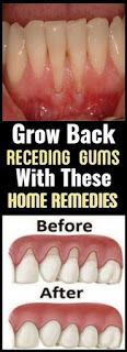 Grow Back Your Receding Gums With These Natural Remedies !....