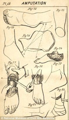 This is page from 'A Manual of Military Surgery' from the Surgeon General's Office, 1863