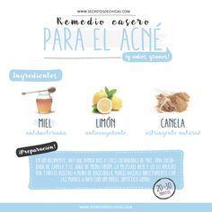 REMEDIO CASERO PARA EL ACNÉ.-Miel: la miel la usamos en muchos remedios caseros porque la verdad es que es un producto natural genial para la piel. Es antibacteriana y nos ayuda a combatir el acné. Canela: es muy beneficiosa para el acné porque es anticoagulante y nos ayuda a desinflamar la piel. Limón: es un astringente natural que nos ayuda a desinfectar la piel, calmarla y a secar el acné.