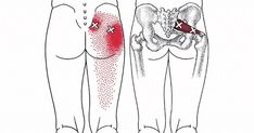The irritation of the sciatic nerve causes hip and lower back pain which spreads downwards to the limbs and feet. It is estimated that 4 out of 10 people will develop sciatica or irritation of this nerve at some point in life. This nerve is located deep Upper Back Pain, Neck And Back Pain, Low Back Pain, Sciatic Nerve, Nerve Pain, Muscle Piriforme, Hip Flexor Exercises, Psoas Release, Piriformis Muscle