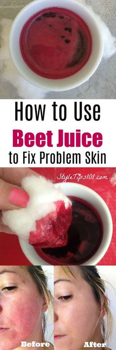 Apply fresh beet juice all over face and neck using a cotton ball. Leave on for 20-30 minutes and rinse off for CLEAR skin!