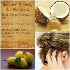 Natural Remedy for Dandruff made with natural coconut oil