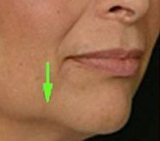 Flabby Skin On The Face Strengthening Treatments: Carry Out Facial Rubbing And Straighten Hanging Tissue