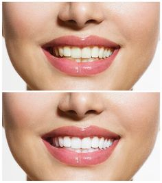 Teeth whitening is offered at Scottsdale Dental Excellence. Learn more: http://www.scottsdaledentalexcellence.com/procedures/cosmetic-dentistry/teeth-whitening/ #teethwhiteningscottsdale