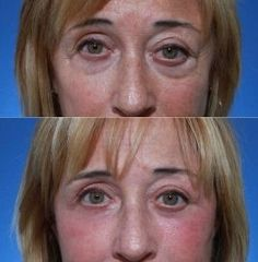 Are Facelift Exercises Leading To Faultless Non-Surgical Chinese Facelifts?