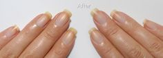 Learn how to recover nails white color with this common ingredient.