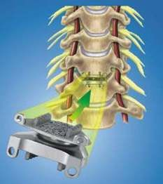 The procedure for cervical disc replacement surgery consists of removing the problem disc entirely and replacing it with a piece of bone taken either from the patient's hip and a metal plate with screws and/or a cervical collar may also be used to help hold the bone in place and to allow this segment of the neck to fuse together.