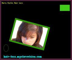 Harry Styles Hair Loss 152507 - Hair Loss Cure!