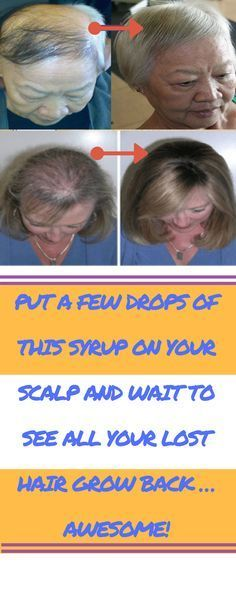 PUT A FEW DROPS OF THIS SYRUP ON YOUR SCALP AND WAIT TO SEE ALL YOUR LOST HAIR GROW BACK … AWESOME!