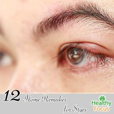 Home Remedies for Styes Include : Aloe Vera, Cloves, Guava Leaves, Cucumber, Castor Oil, Coriander Seeds, Green Tea Bags, Turmeric and Baby Shampoo.