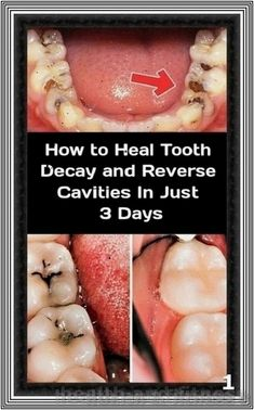 The Only 6 Natural Remedies You Need To Heal Tooth Decay and Cavities | 234 health and fitness
