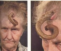 Weirdest Medical Conditions You Will Ever See - Bizarre Images of Cutaneous Horns Gendarmenmarkt Berlin, Human Oddities, Last Unicorn, Real Unicorn, Life Changing Books, Foto Real, Illuminati, Medical Conditions, Johnny Depp