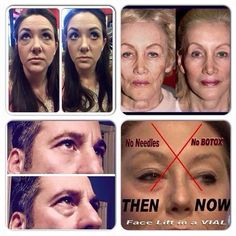"""☆ ERASE 10 years in 2 minutes with """"Instantly Ageless By Jeunesse """": Includes 1 Sachet . Starting at $1"""