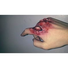 Image Collection #4: Moulage Injuries This third degree ...