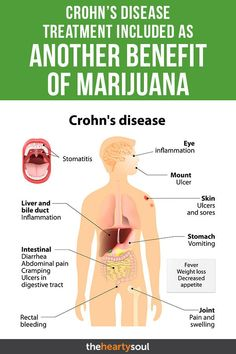 Do you have Crohn's disease symptoms? Well, a recent study suggests a natural Crohn's treatment might be found in marijuana benefits. Liver Bile, Crohns Disease Diet, Crohn's Disease Symptoms, Crohns Disease Quotes, Ulcerative Colitis Diet, Health Benefits, Health Tips, Oil Benefits, Stomach Ulcers