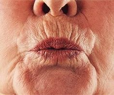 Don't Do Botox - This Removes Lip Lines & Jowls in Seconds! - Botox News Korean Beauty Tips, Beauty Tips For Face, Beauty Hacks, Beauty Care, How To Line Lips, Loose Skin, Sagging Skin, Best Essential Oils, Skin Care Tips