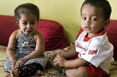 World's Smallest Girl - Jyoti Amge