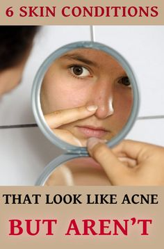 6 skin conditions that look like acne but aren't