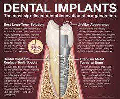 Dental implants explained from dental doctor, inc.