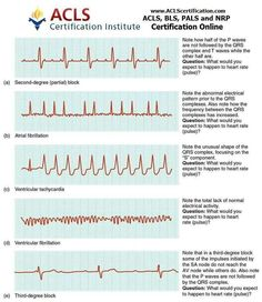 Cardiac Muscle and Electrical Activity - Anatomy and Physiology - OpenStax Cardiac Nursing, Nursing Mnemonics, Nursing Degree, Ventricular Tachycardia, Atrial Fibrillation, Ekg Interpretation, Cardiac Arrhythmia, Cardiac Rhythms, Nursing