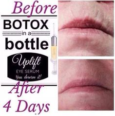 Botox in a bottle, liquid gold, and magical serum are just a few of the nicknames for Younique's Uplift Eye Serum. You can use it any where you have fine lines and wrinkles. Get yours now at www.LashMamaStacy.com