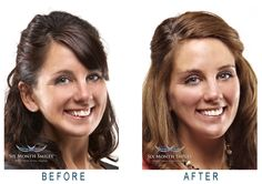 Six Month Smiles Teeth Straightening, Six Month, Orthodontics, Dental, Smile, Dentist Clinic, Laughing