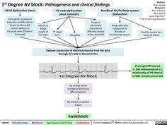 Degree AV block: Pathogenesis and Clinical Findings Nursing School Tips, Nursing Career, Nursing Notes, Nursing Information, Cardiac Nursing, Respiratory Therapy, Human Anatomy And Physiology, Medical Mnemonics, Medical Facts