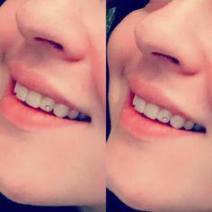 @alexandra.chibs  моя любимая пациентка#зубы#скайс #скайсназуб #скайсы #скайсыназубы #улыбайся #улыбка #улыбнисьсмело#протезированиезубов #ортопедическаястоматология #коронка #протезы #crown #dentures #teeth #smile #dentist #dentista #dentistry#skyce#friends#friendship#дружба by swetlana_wolkowa Our Dentures Page: http://www.myimagedental.com/services/general-dentistry/dentures/ Other General Dentistry services we offer: http://www.myimagedental.com/services/general-dentistry/ Google My…