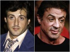 It's well known that Sylvester Stallone got extensive facial plastic surgery. Before and after photos of his facelift show how his eyes and cheeks look puffy and unnatural. Extreme Plastic Surgery, Celebrity Plastic Surgery, Sylvester Stallone, Long To Short Hair, Short Hair Styles, Best Airbrush Makeup, Before After Hair, Celebrities Before And After, Nose Surgery