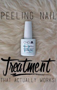 Peeling nail treatment that actually works!