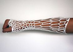 """Inspired by 3D Printing technology's ability to make custom-fitted objects, Jake Evill created the Cortex 3D cast. The cast is created from a scan of a patients skin and bones, creating the optimal form for healing, """"with denser support focused around the fracture itself."""""""